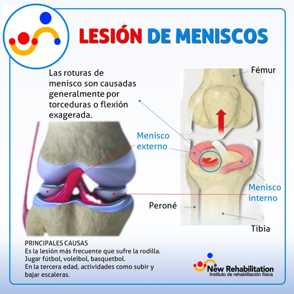 Es la lesión más frecuente que sufre la rodilla se puede romper durante las actividades deportivas