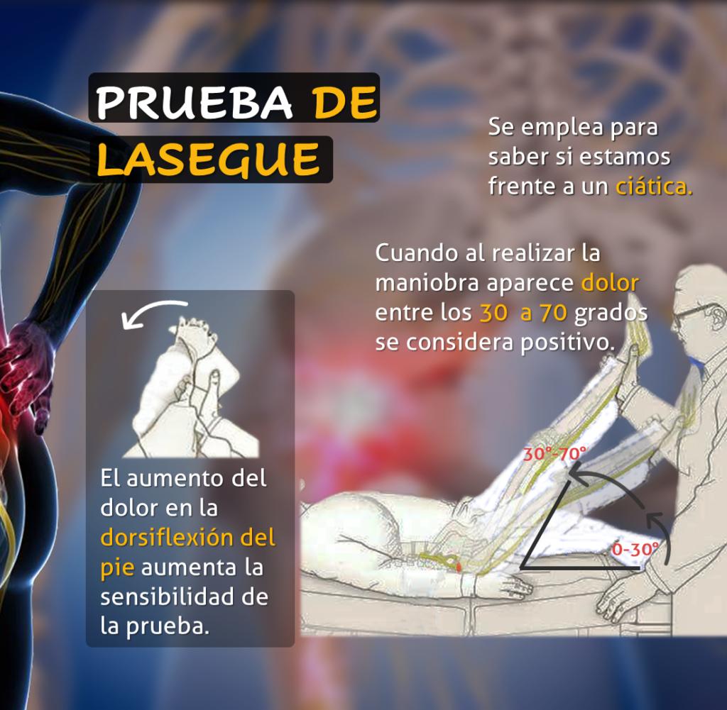 Maniobra de Lasègue positivo indicando un posible compresión radicular