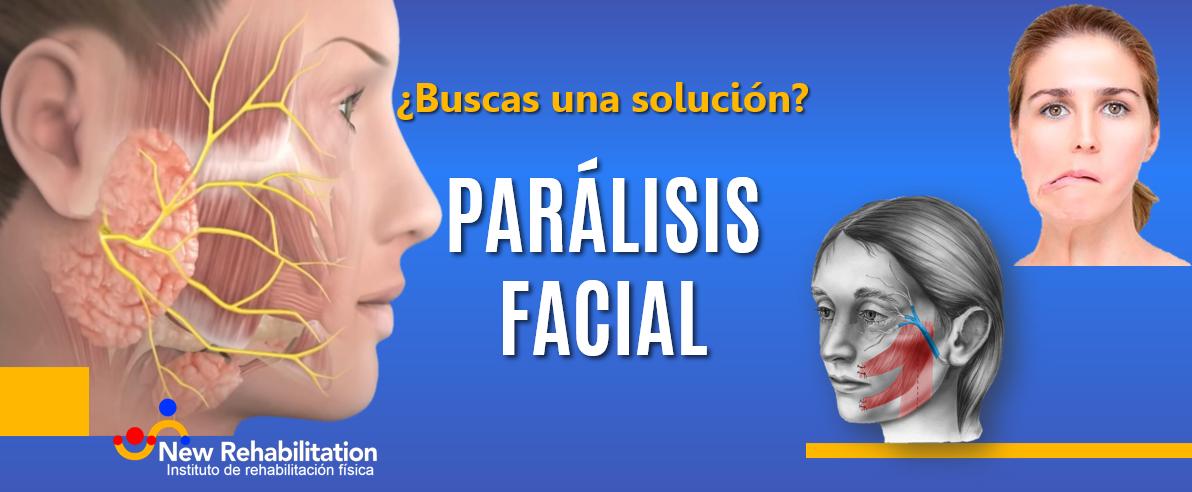 ¿Qué es una parálisis facial y cómo recuperarte?